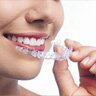 Ortho_ Aligners (teeth straightening) INVISALIGN