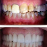 full mouth resorations