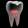 single visit root canals